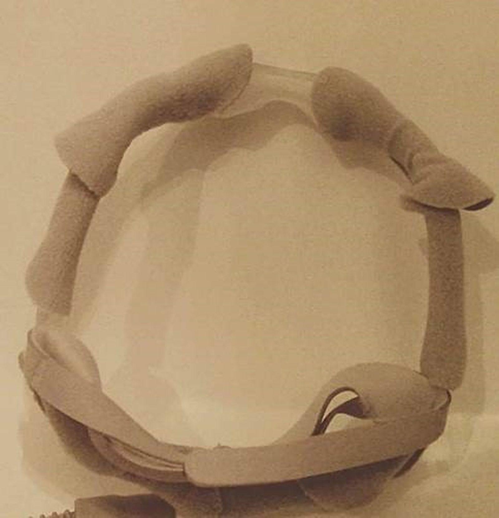 FRANCKHAUSER Chloé - Imperfection 5
